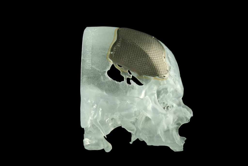 3D bone scan showing damaged bone replaced with 3D printed implants
