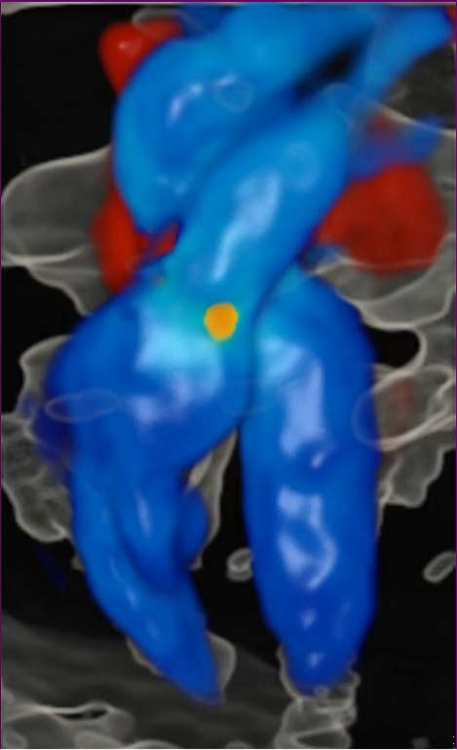 /><br /> <br /> <em>An image of a fetal heart at 28 weeks obtained with HDlive Flow.</em><br /> <br /> The system also supports a new software feature called HD<em>live</em>Silhouette, which gives the images their anatomical realism.Doctors can use itparticularly in the first trimesterto study internal and external organs and body parts of the fetus, such as the brain, face, hands and feet.<br /> <br /> <img src=