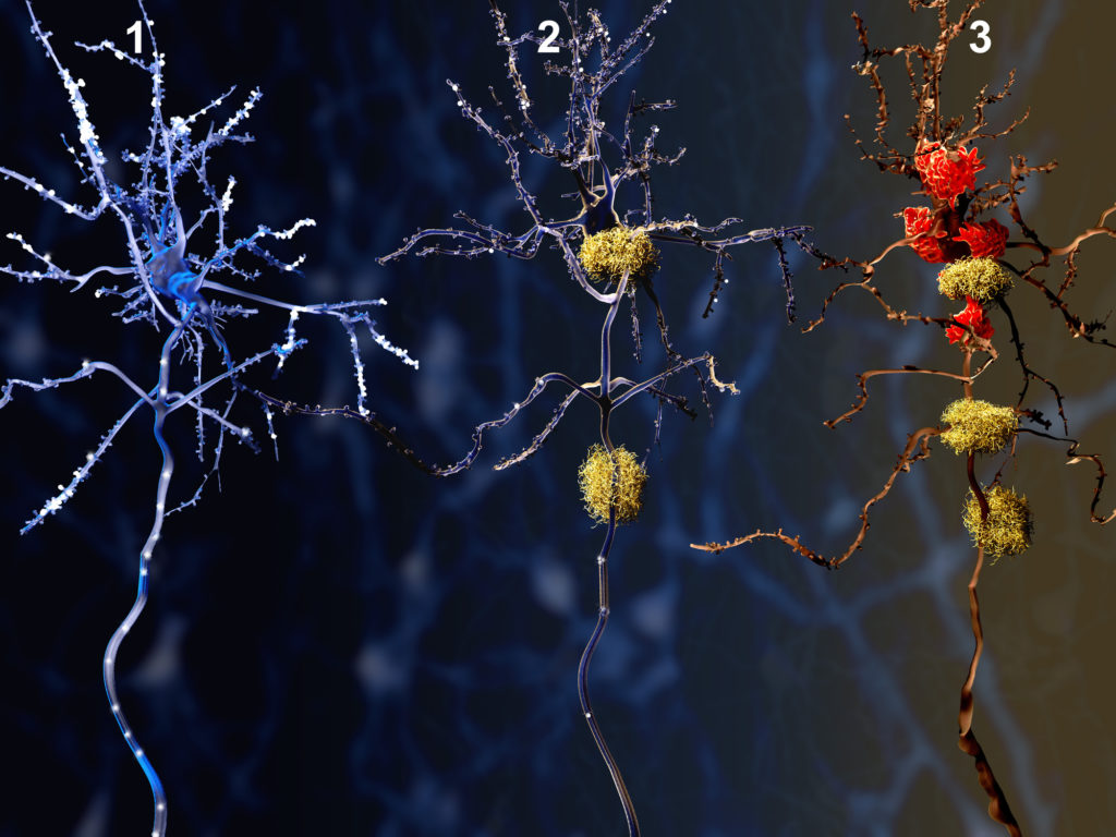 1. Healthy neuron. 2. Neuron with amyloid plaques (yellow). 3. Dead neuron being digested by microglia cells (red)