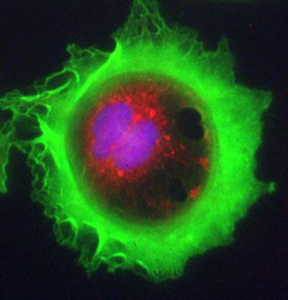 Lung adenocarcinoma cell