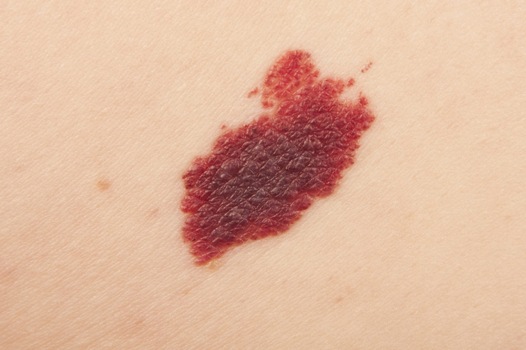 Angioma on a woman back.