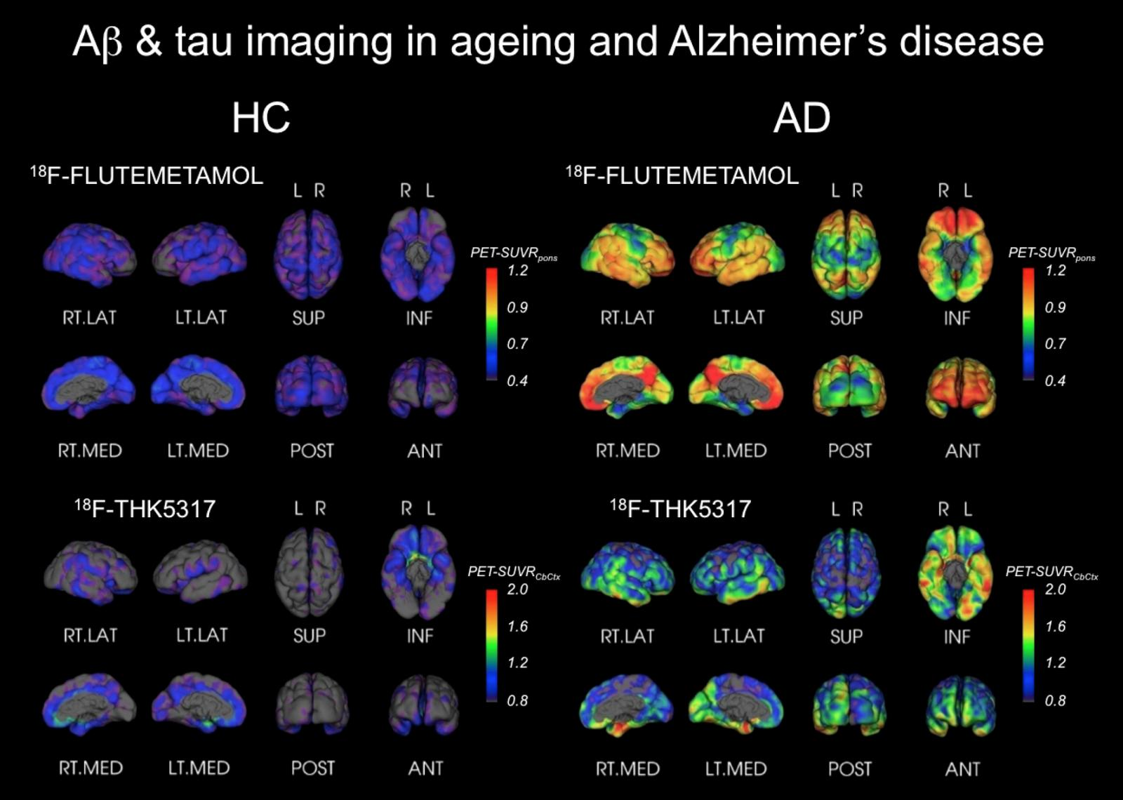 "/><br /> <br /> <em>These images show tau and beta-amyloid PET tracers being used for Alzheimer's research, and were produced by the CSIRO working with Professors Chris Rowe and Victor Villemagne at Austin Health. There are parallels between this approach to brain-disease research and the latest PTSD study, in that specific tracers that bind to abnormal brain matter are being used in conjunction with PET scans. These scans show how the tracers light up abnormal areas of the brain: red is more strongly abnormal, while grey, purple and blue are ""no abnormality"".  HC = healthy control; AD = person with Alzheimer's disease. Flutemetamol is the PET beta-amyloid tracer and THK5317 is the PET tau tracer. Credit: Austin Hospital.</em><br /> <br /> ""The PET tracers that GE has developed enable specialists to study biochemical changes inside the brain that indicate either short- or long-term damage to brain tissue, which may be the beginning of a disease developing,"" explains Dr Tim O'Meara, regional research manager for GE Healthcare Australia and New Zealand. ""The PET tracers are highly specific and enable specialists to look for 'hotspots' in the brain, which previously was only possible post-mortem.<br /> <br /> ""The PET tracers are made by attaching a radioactive tag to a compound that binds specifically to an abnormal target inside the brain. The tracer is given intravenously and moves through the blood where it binds to the abnormal target, and this is captured by the PET scan of the patient's brain. For Alzheimer's disease, the relevant abnormal target is thought to be a protein called beta-amyloid, which misfolds and accumulates in the brain. Beta-amyloid accumulation in the brain is a strong signal that Alzheimer's is developing. For PTSD, phosphorylated tau may be the relevant abnormal target for the tracer.""<br /> <br /> As Miriam Dwyer says, ""we understand the consequences from a psychological perspective of PTSD, but not the specific causes"", which is why this research is so important. ""We know what the symptoms are when you develop PTSD, but the treatments are still not great. The standard treatment is exposure therapy, basically re-exposing the individual to the traumatic memory in a controlled environment, while delivering education, cognitive restructuring and fostering improved coping skills. And that works well in about one-third of patients; doesn't work at all in another third and it can actually have a negative impact for some patients if delivered incorrectly. There aren't any very good drugs in development for PTSD, probably because of the complex combination of emotional, cognitive, behavioural and biological symptoms. We're still really trying to understand how we can effectively engage and treat all sufferers—not just one-third. We're working with the veteran community and the ADF to identify those at risk of developing mental-health issues or readjustment issues. And along with that, we are studying the genetics, epigenetics and biomarkers to see if there's an objective clinical way of identifying those at risk, as well as taking a holistic approach to the diagnosis and treatment.""<br /> <br /> Luke Ross believes all this research will be a game-changer for Army psychologists. In the meantime, he's focused on looking out for servicemen and women every step of the way. ""I'm incredibly proud of the service that our soldiers give,"" he says. ""I've been really, really happy over the past 20 years to see the difference in how the Army treats those with psychological distress. We've got much better at looking after our Diggers—and the first job of every officer is to look after your Diggers.""<br /> <br /> <em>All PET brain scan images in this story, including the feature image on the home page, relate to Alzheimer's research.</em>               </section>                                                           <h6 class="