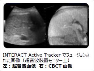 イメージ画像:INTERACT Active Tracker でフュージョンされた画像(超音波装置モニター上)