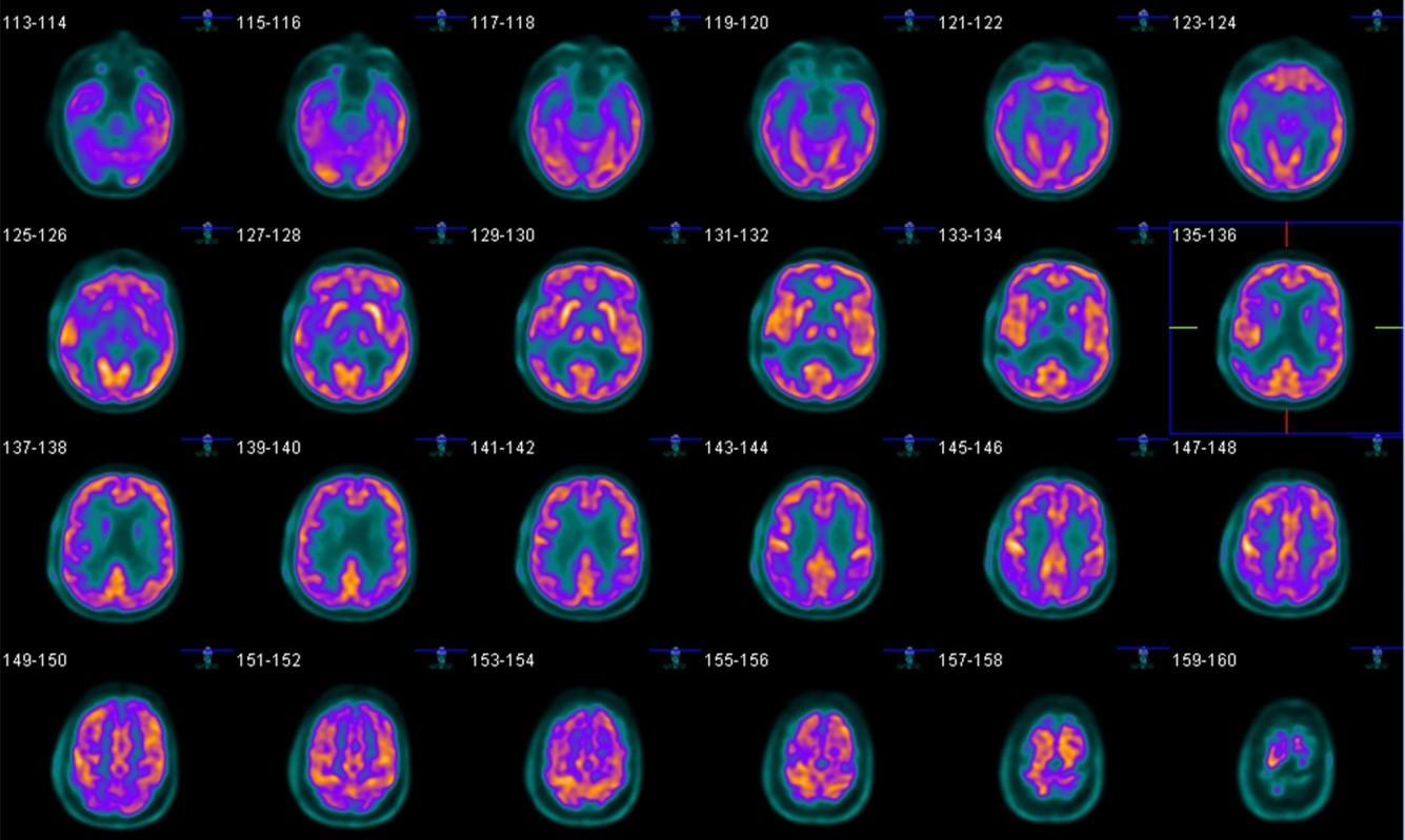 Positron-Emission Tomography Detectors   GE Research